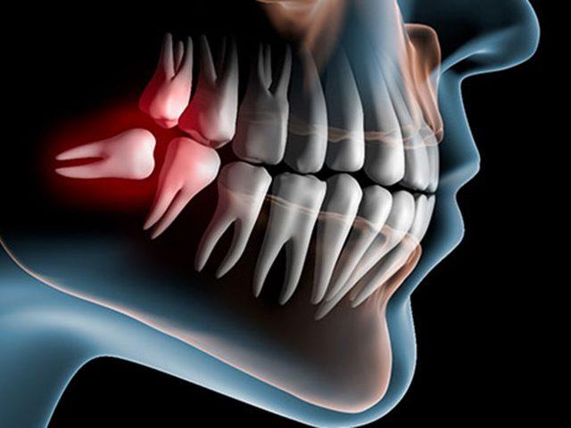 O posicionamento e forma de saída dos dentes do siso podem exigir a remoção