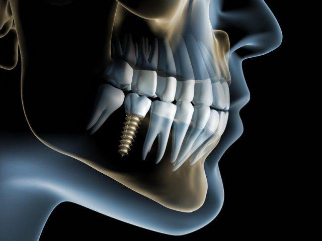 O implante dentário deve ser realizado por profissionais gabaritados, consulte a SmartClear